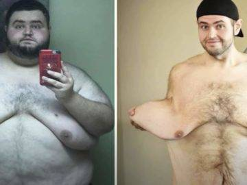 15 Fattest People in the World Who Lost a TON of Weight!